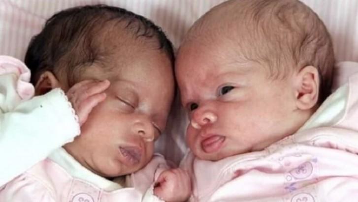 Один белый, другой — не совсем. Почему отец новорожденных потерял сознание?