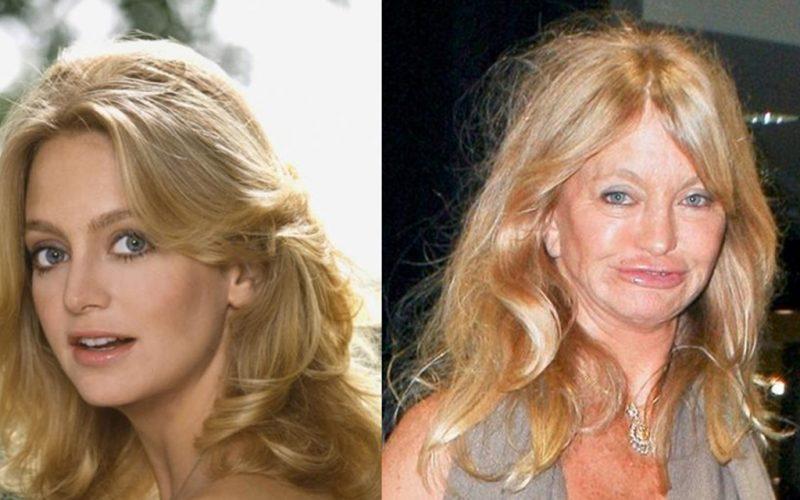 Совершенно другой человек: знаменитые женщины, которые увеличили губы и стали неузнаваемыми