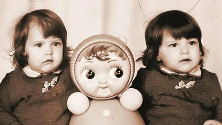 Какими стали сиамские близняшки Аня и Таня спустя 30 лет с операции по разделению?