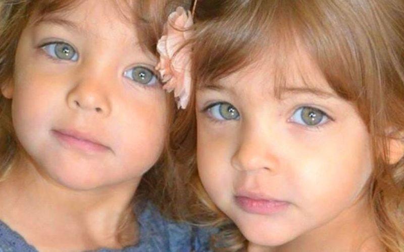 Какими стали самые красивые в мире близняшки, которые знамениты с рождения
