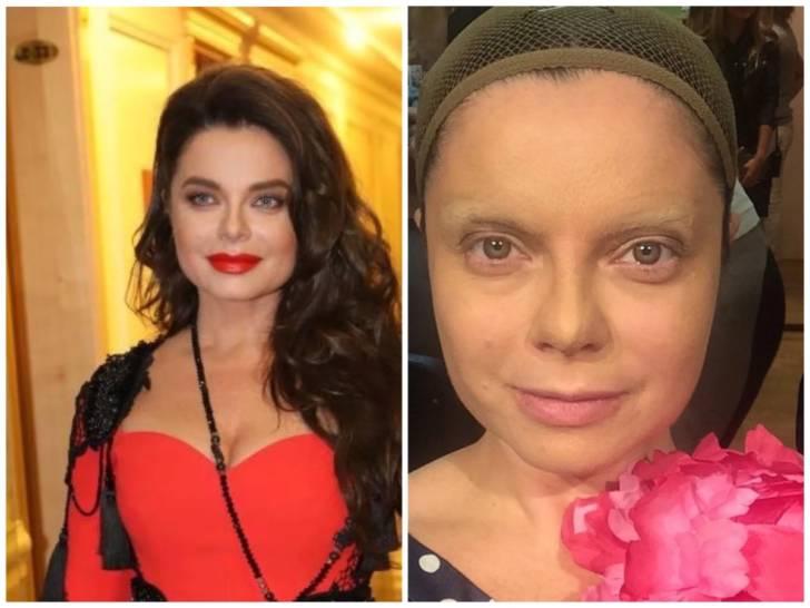 Придуманная красота: 5 звезд, которые показали свое лицо без макияжа