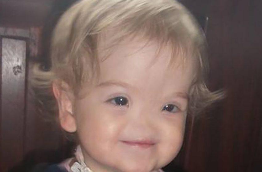 Как сегодня выглядит девочка, которая родилась без носа