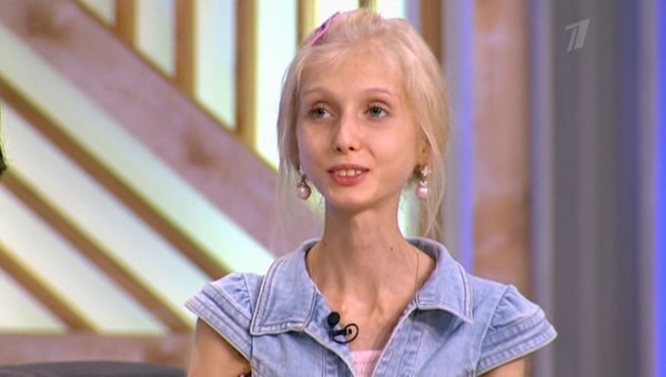 Борьба с анорексией: какой стала известная героиня программы «Пусть говорят» спустя 8 лет