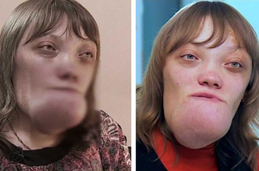 «Я стесняюсь своего тела»: как выглядит девушка с редким диагнозом после многочисленных операций