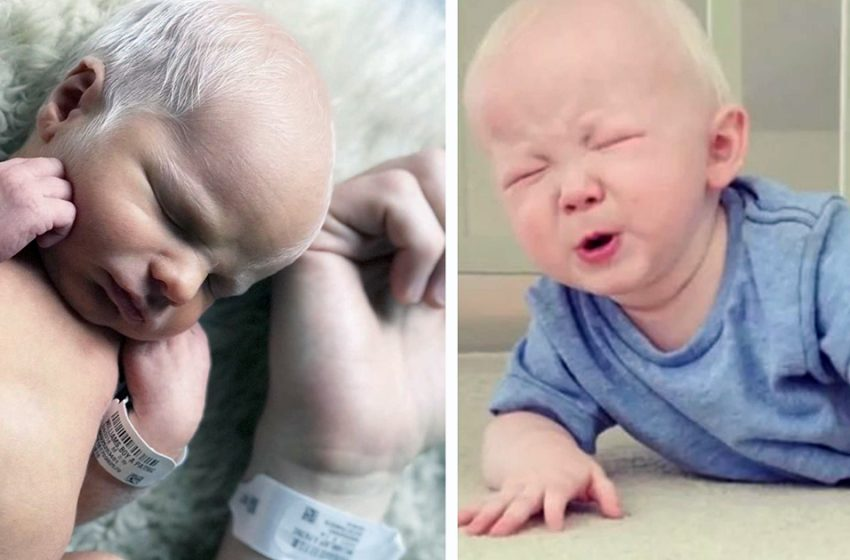Как сейчас выглядят братья, которые родились с седыми волосами