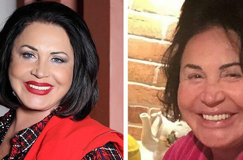 «Без косметики и париков»: «честные» снимки знаменитостей, от которых могут пойти мурашки