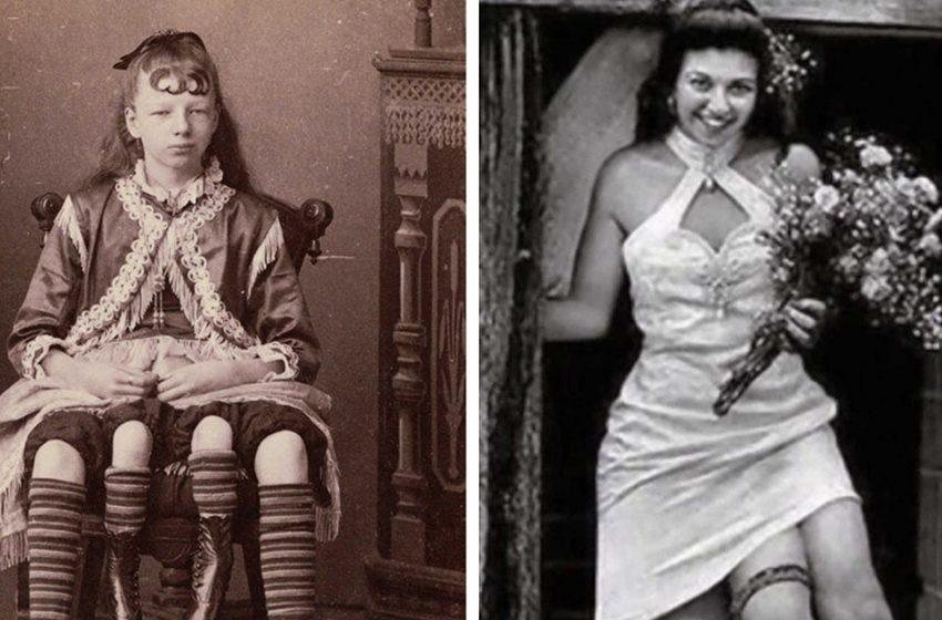 «Миртл Корбин — четырехногая девочка из цирка»: как ей удалось обрести свое счастье