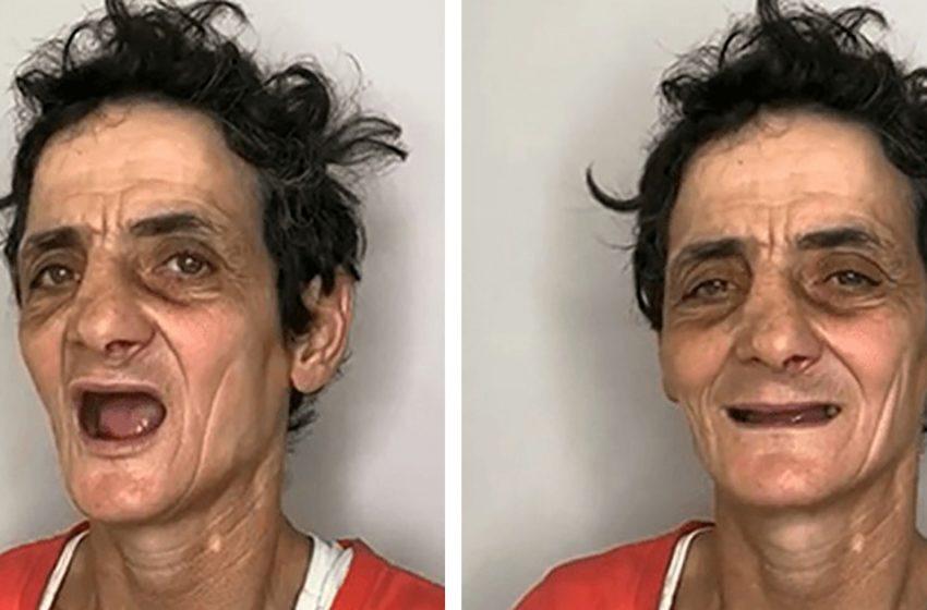 «Отмыли и вставили зубы»: стилисты решили помочь бездомной, преобразив ее до неузнаваемости