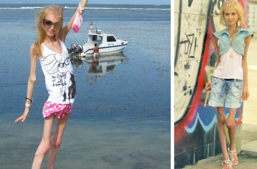 Как сейчас выглядит Ксения Бубенко, которая 10 лет назад весила всего 23 килограмма